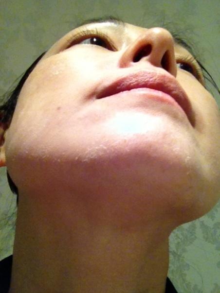 ドクターリセラ ハーバルシーメソッド症例