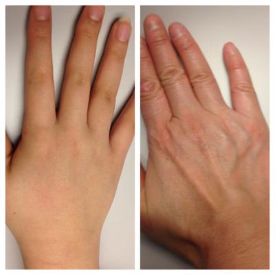手の甲比較