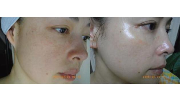 「肌再生7週間目の報告」と「賢い化粧品選び」