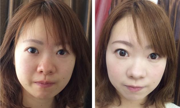 透輝メイクの症例