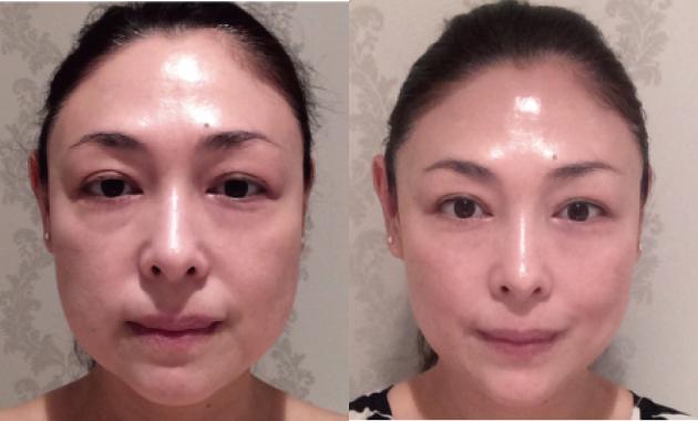 むくみ顔の改善