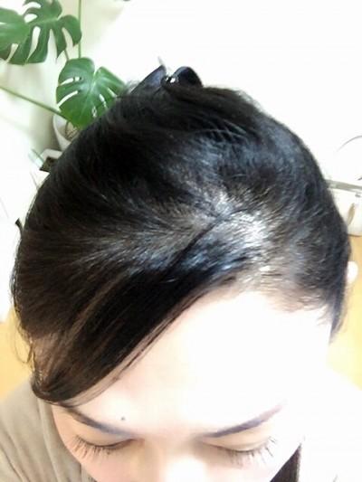 土橋の髪の毛の悩み