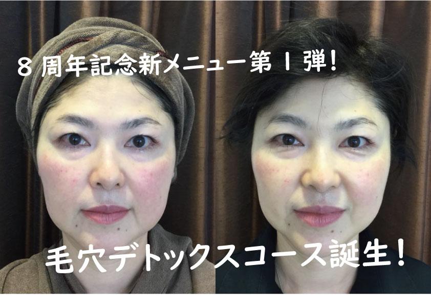 8周年記念新メニュー第1弾!「パーフェクト毛穴デトックス」誕生!