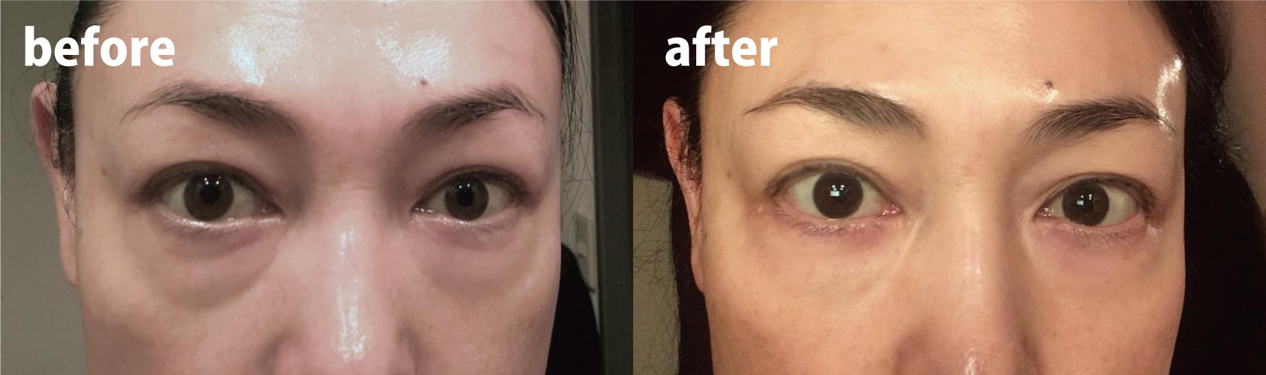 目の下のたるみ改善